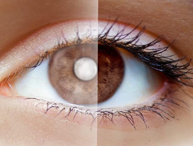 Las cataratas de ojo